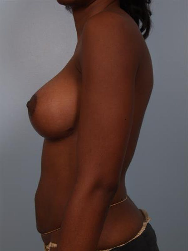 Breast Lift with Implants Gallery - Patient 1612663 - Image 6
