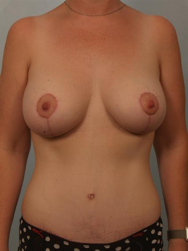 Breast Lift with Implants Gallery - Patient 1612664 - Image 2