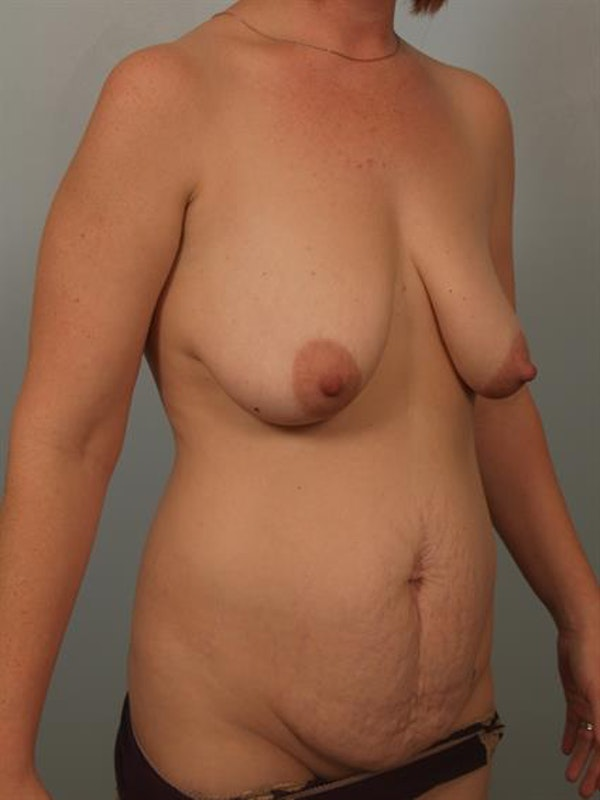 Breast Lift with Implants Gallery - Patient 1612664 - Image 3