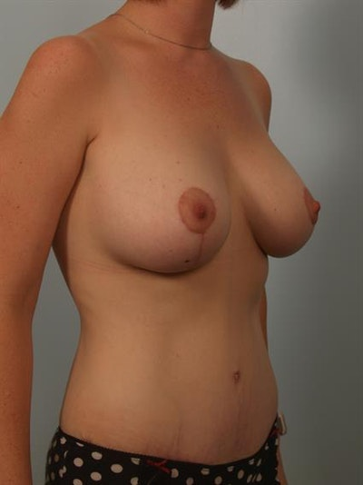 Breast Lift with Implants Gallery - Patient 1612664 - Image 4