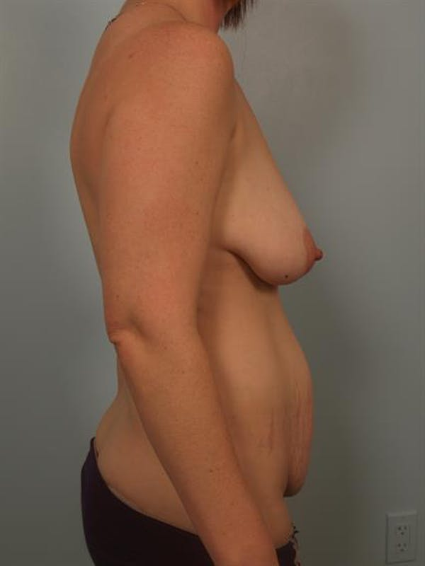 Breast Lift with Implants Gallery - Patient 1612664 - Image 5