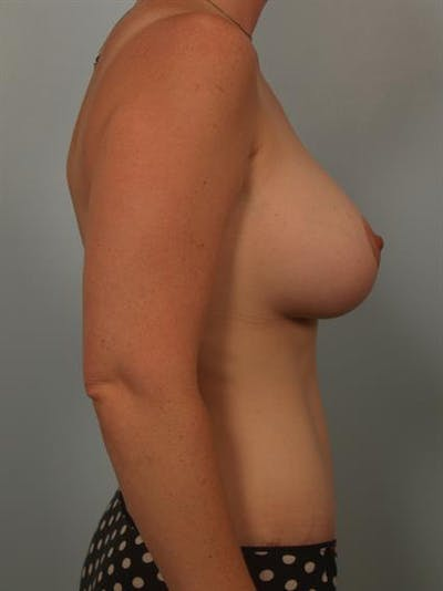Breast Lift with Implants Gallery - Patient 1612664 - Image 6