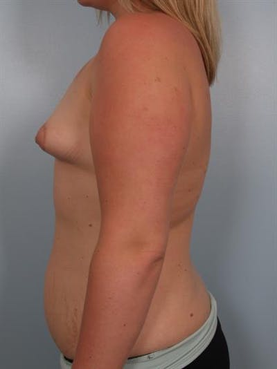 Breast Lift with Implants Gallery - Patient 1612666 - Image 1