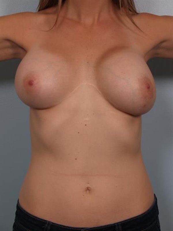 Breast Lift with Implants Gallery - Patient 1612667 - Image 1