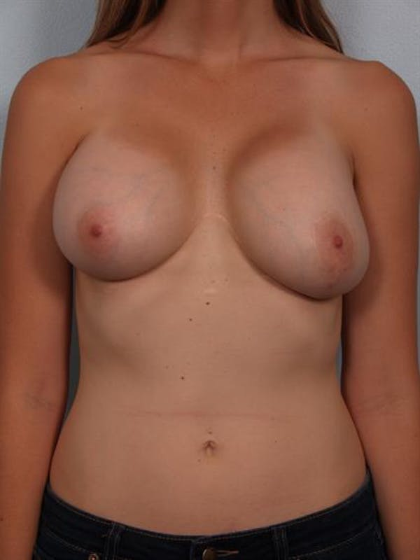 Breast Lift with Implants Gallery - Patient 1612667 - Image 3