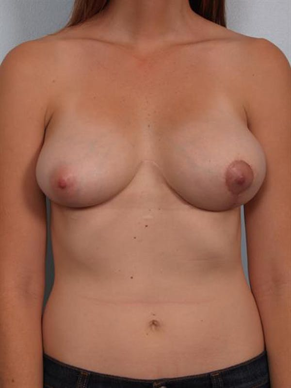 Breast Lift with Implants Gallery - Patient 1612667 - Image 4