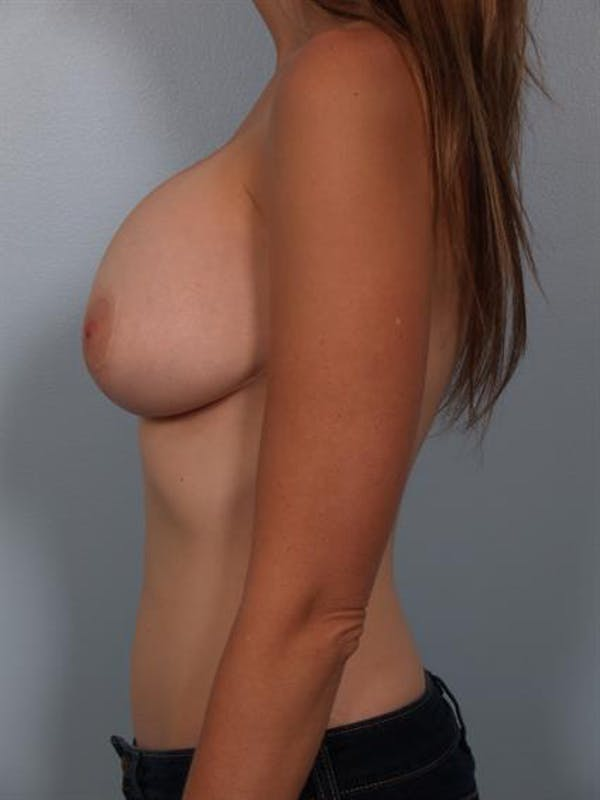 Breast Lift with Implants Gallery - Patient 1612667 - Image 5
