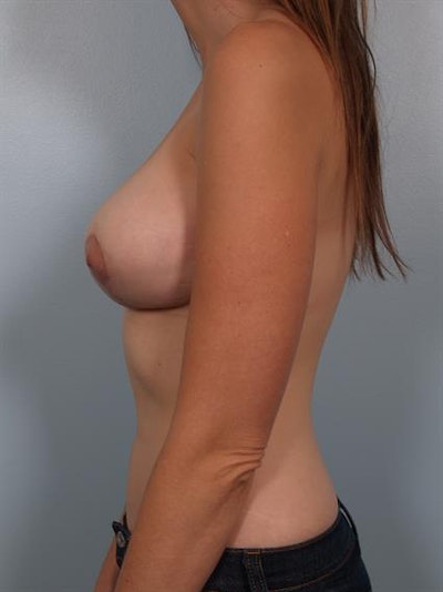 Breast Lift with Implants Gallery - Patient 1612667 - Image 6