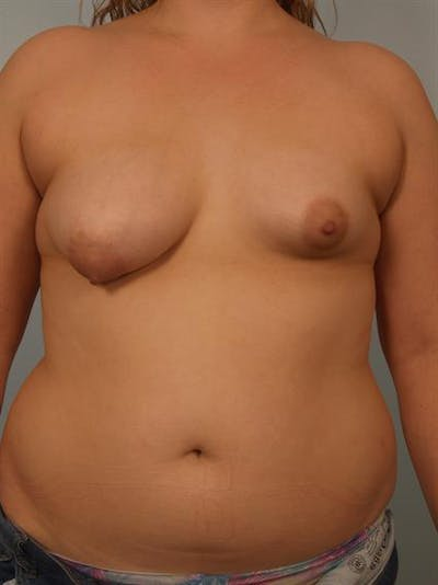 Breast Lift with Implants Gallery - Patient 1612668 - Image 1