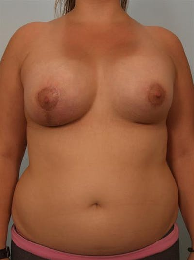 Breast Lift with Implants Gallery - Patient 1612668 - Image 2