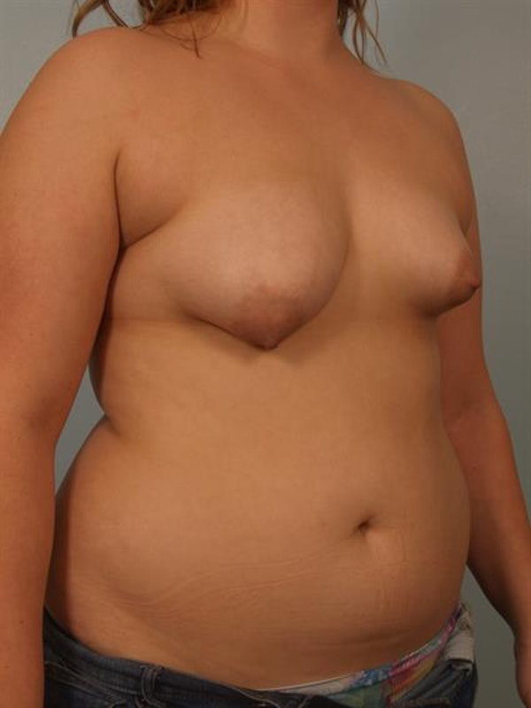 Breast Lift with Implants Gallery - Patient 1612668 - Image 3