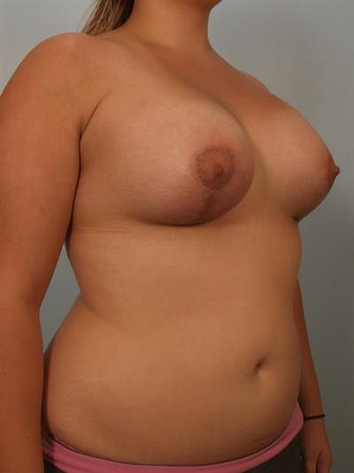 Breast Lift with Implants Gallery - Patient 1612668 - Image 4