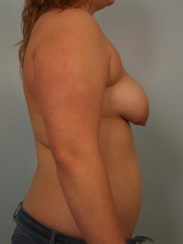 Breast Lift with Implants Gallery - Patient 1612668 - Image 5