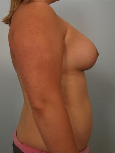 Breast Lift with Implants Gallery - Patient 1612668 - Image 6