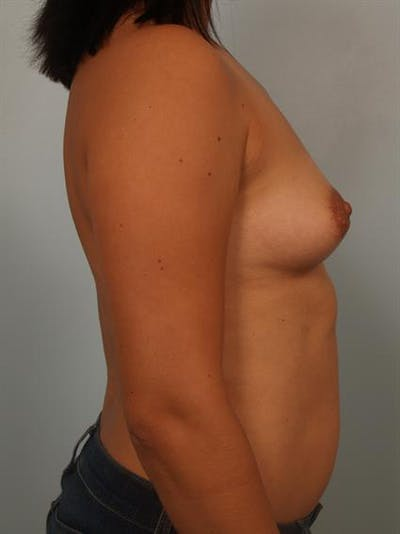 Breast Lift with Implants Gallery - Patient 1612669 - Image 1