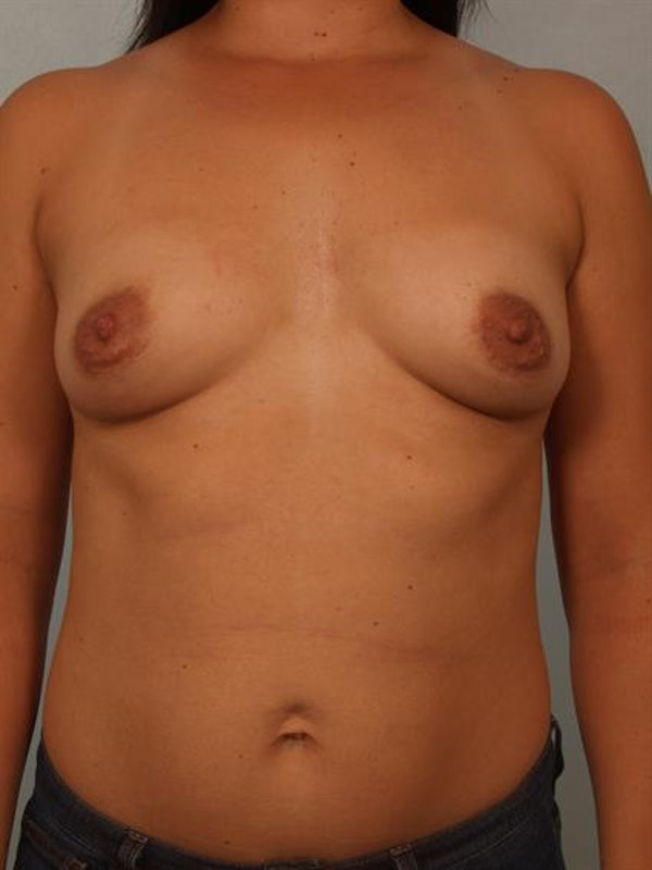 Breast Lift with Implants Gallery - Patient 1612669 - Image 3