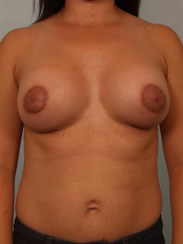 Breast Lift with Implants Gallery - Patient 1612669 - Image 4