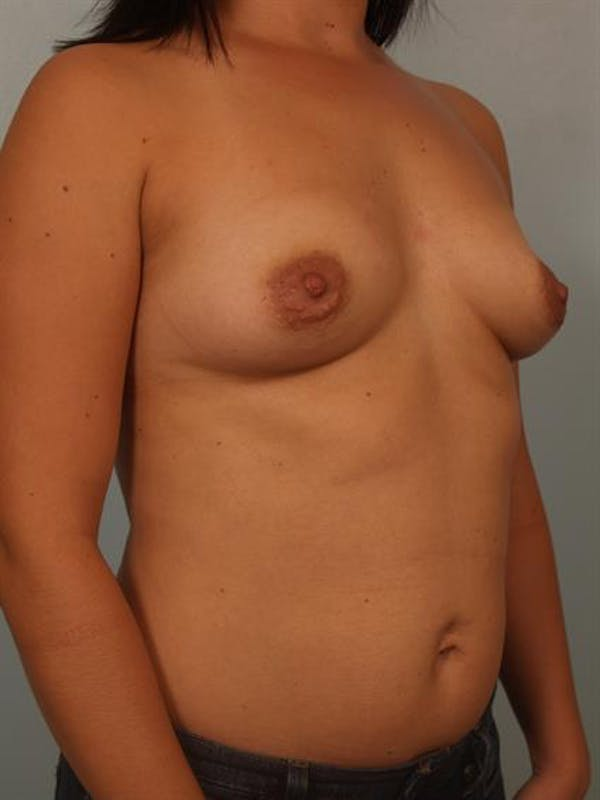 Breast Lift with Implants Gallery - Patient 1612669 - Image 5