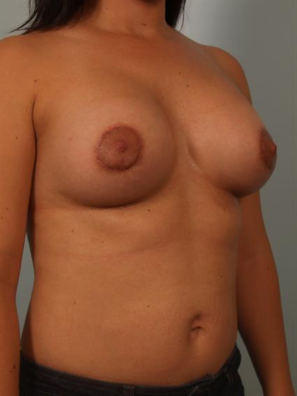Breast Lift with Implants Gallery - Patient 1612669 - Image 6