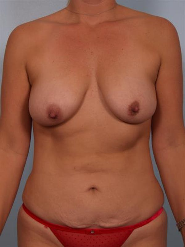 Breast Lift with Implants Gallery - Patient 1612670 - Image 3