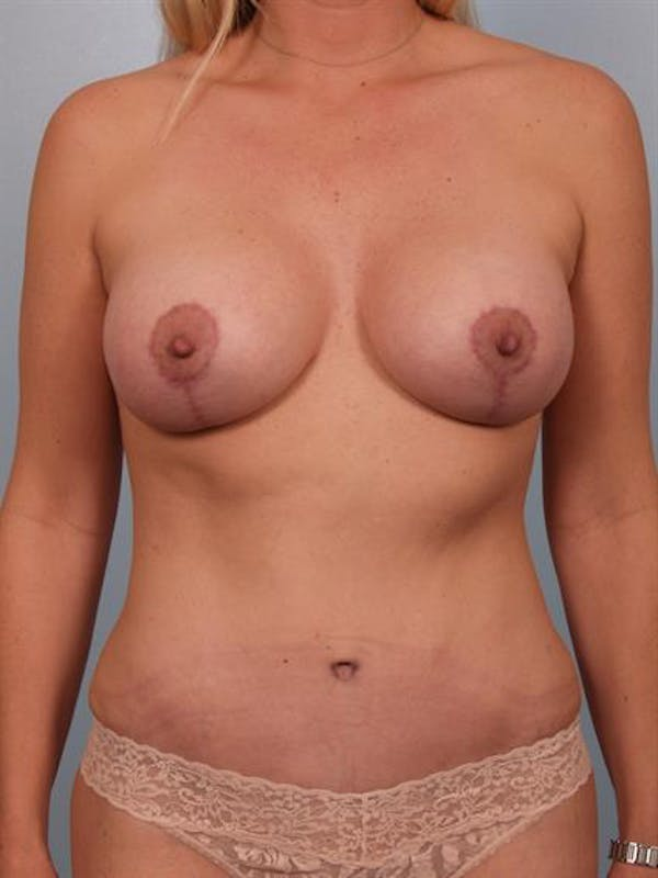 Breast Lift with Implants Gallery - Patient 1612670 - Image 4
