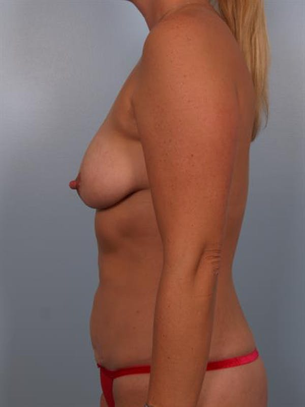 Breast Lift with Implants Gallery - Patient 1612670 - Image 5