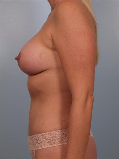Breast Lift with Implants Gallery - Patient 1612670 - Image 6