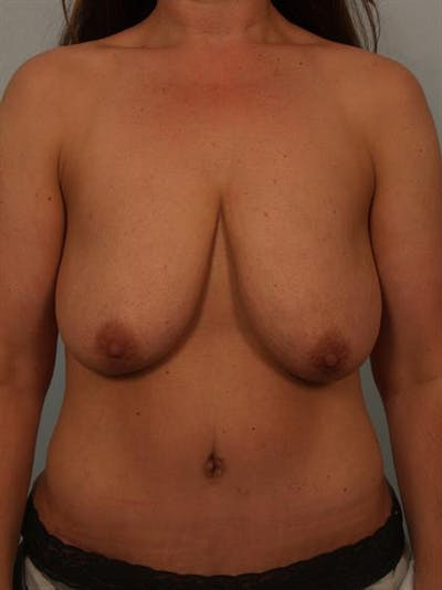 Breast Lift with Implants Gallery - Patient 1612671 - Image 1