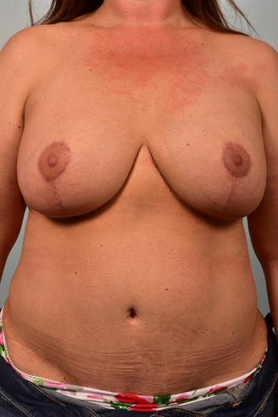 Breast Lift with Implants Gallery - Patient 1612671 - Image 2