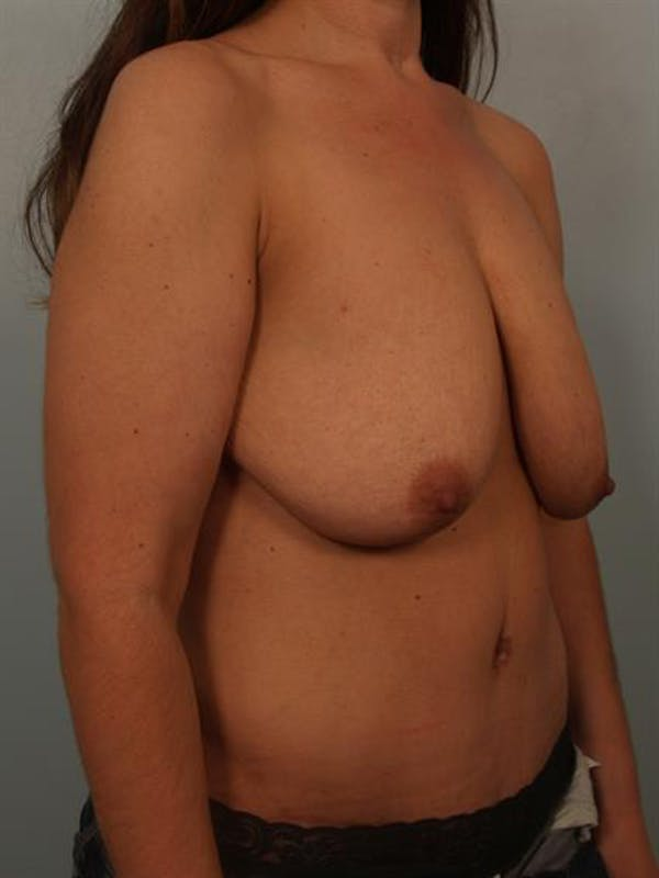 Breast Lift with Implants Gallery - Patient 1612671 - Image 3