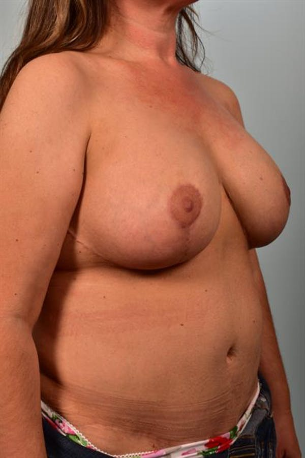 Breast Lift with Implants Gallery - Patient 1612671 - Image 4