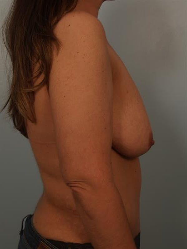 Breast Lift with Implants Gallery - Patient 1612671 - Image 5