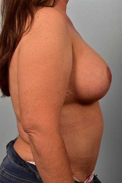 Breast Lift with Implants Gallery - Patient 1612671 - Image 6