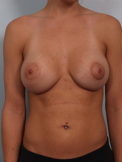 Breast Lift with Implants Gallery - Patient 1612672 - Image 4