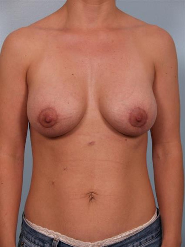 Breast Lift with Implants Gallery - Patient 1612673 - Image 2