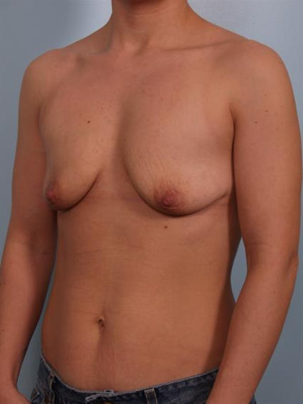 Breast Lift with Implants Gallery - Patient 1612673 - Image 3