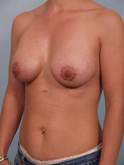 Breast Lift with Implants Gallery - Patient 1612673 - Image 4