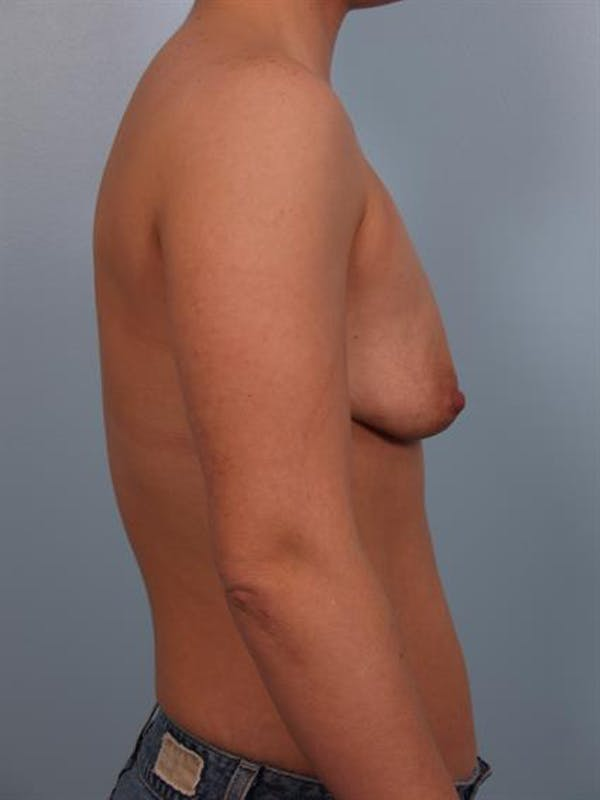 Breast Lift with Implants Gallery - Patient 1612673 - Image 5
