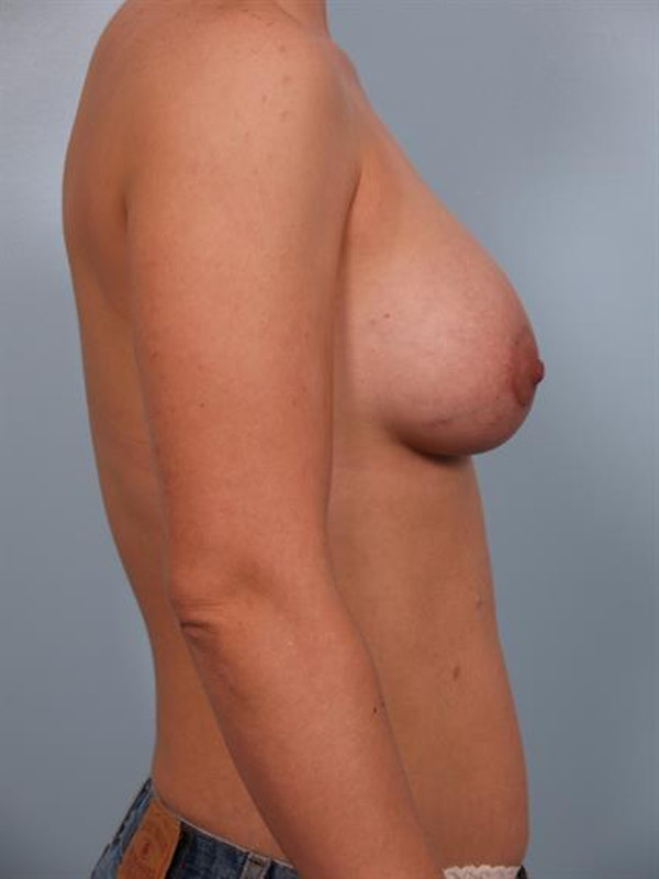 Breast Lift with Implants Gallery - Patient 1612673 - Image 6