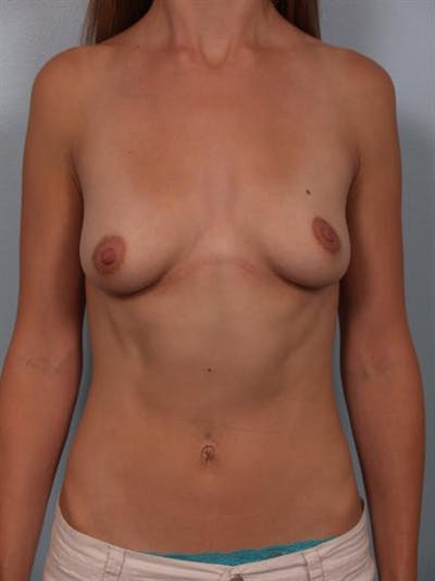 Breast Lift with Implants Gallery - Patient 1612674 - Image 1