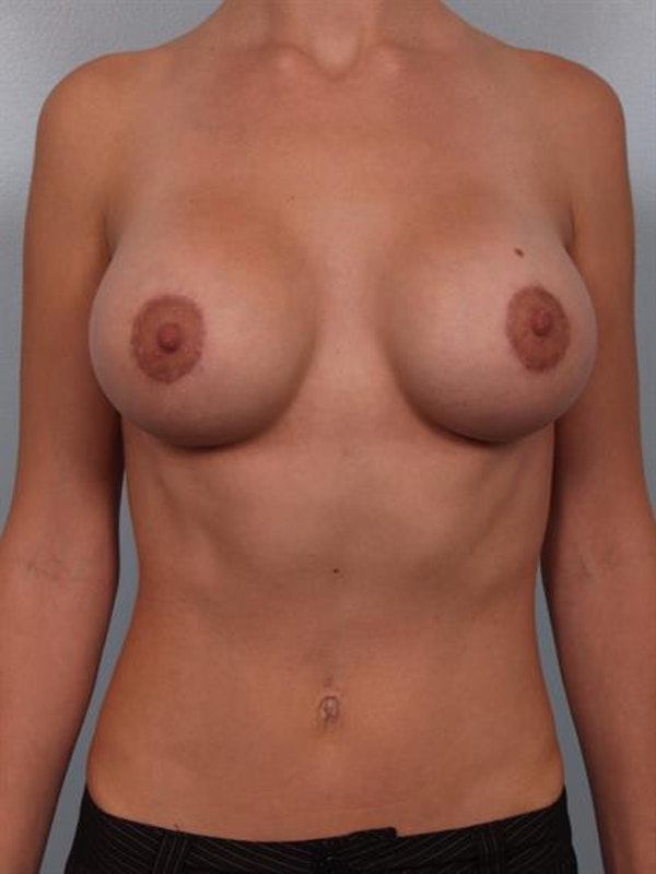 Breast Lift with Implants Gallery - Patient 1612674 - Image 2
