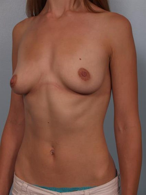 Breast Lift with Implants Gallery - Patient 1612674 - Image 3