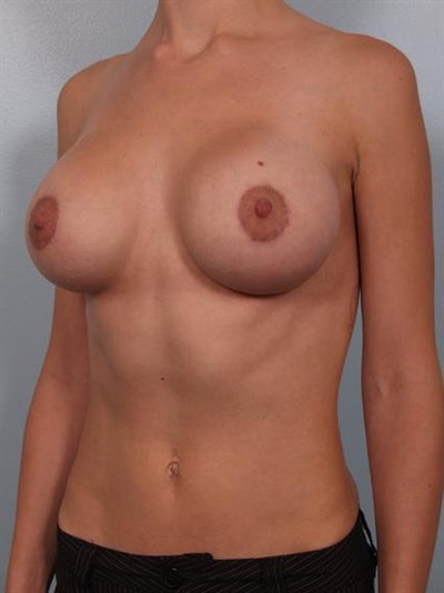 Breast Lift with Implants Gallery - Patient 1612674 - Image 4