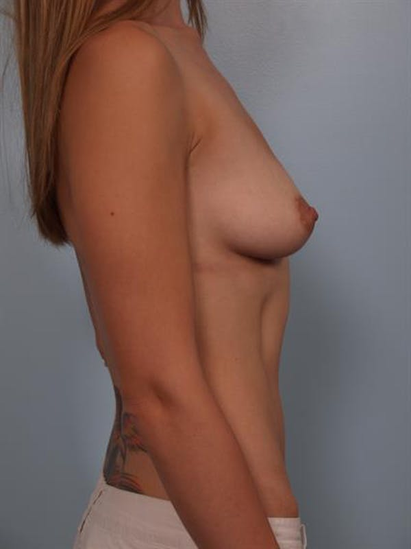 Breast Lift with Implants Gallery - Patient 1612674 - Image 5