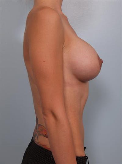 Breast Lift with Implants Gallery - Patient 1612674 - Image 6