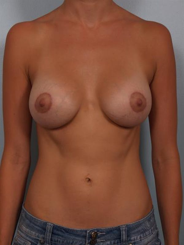 Breast Lift with Implants Gallery - Patient 1612675 - Image 2