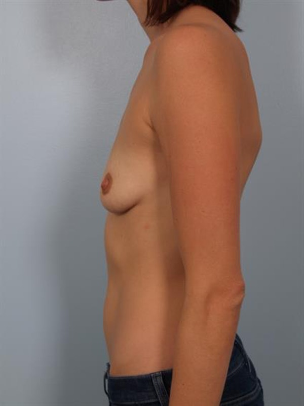 Breast Lift with Implants Gallery - Patient 1612675 - Image 3