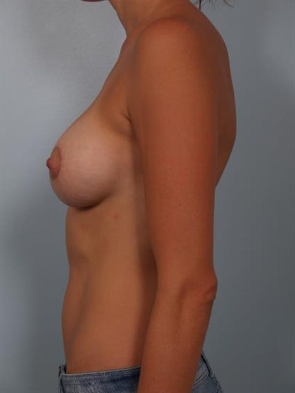 Breast Lift with Implants Gallery - Patient 1612675 - Image 4