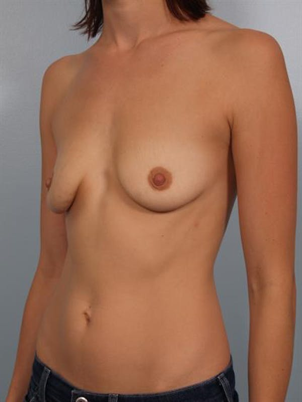 Breast Lift with Implants Gallery - Patient 1612675 - Image 5