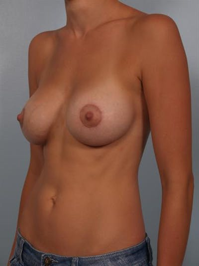 Breast Lift with Implants Gallery - Patient 1612675 - Image 6